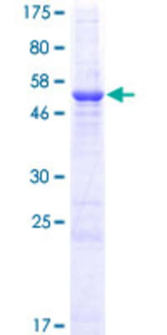 Abnova™Human DSCR1L1 Full-length ORF (AAH38509.1, 1 a.a. - 225 a.a.) Recombinant Protein with GST-tag at N-terminal 10μg Abnova™Human DSCR1L1 Full-length ORF (AAH38509.1, 1 a.a. - 225 a.a.) Recombinant Protein with GST-tag at N-terminal