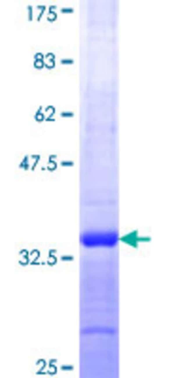 Abnova Human GYG Partial ORF (NP_004121, 1 a.a. - 73 a.a.) Recombinant