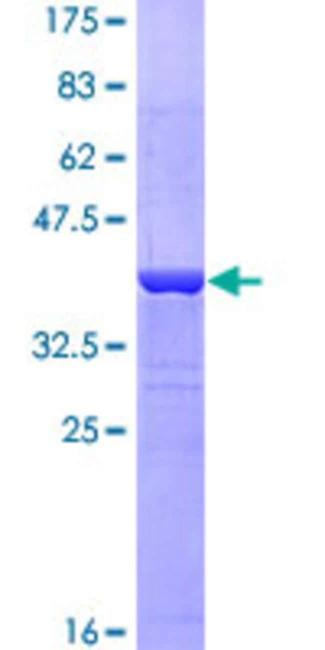 Abnova™Human MSLN Partial ORF (NP_005814, 464 a.a. - 563 a.a.) Recombinant Protein with GST-tag at N-terminal 25μg Abnova™Human MSLN Partial ORF (NP_005814, 464 a.a. - 563 a.a.) Recombinant Protein with GST-tag at N-terminal