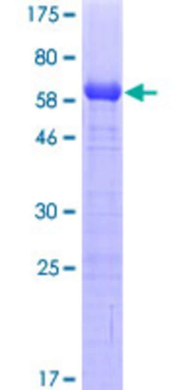 AbnovaHuman RASGRP2 Partial ORF (NP_005816, 65 a.a. - 164 a.a.) Recombinant