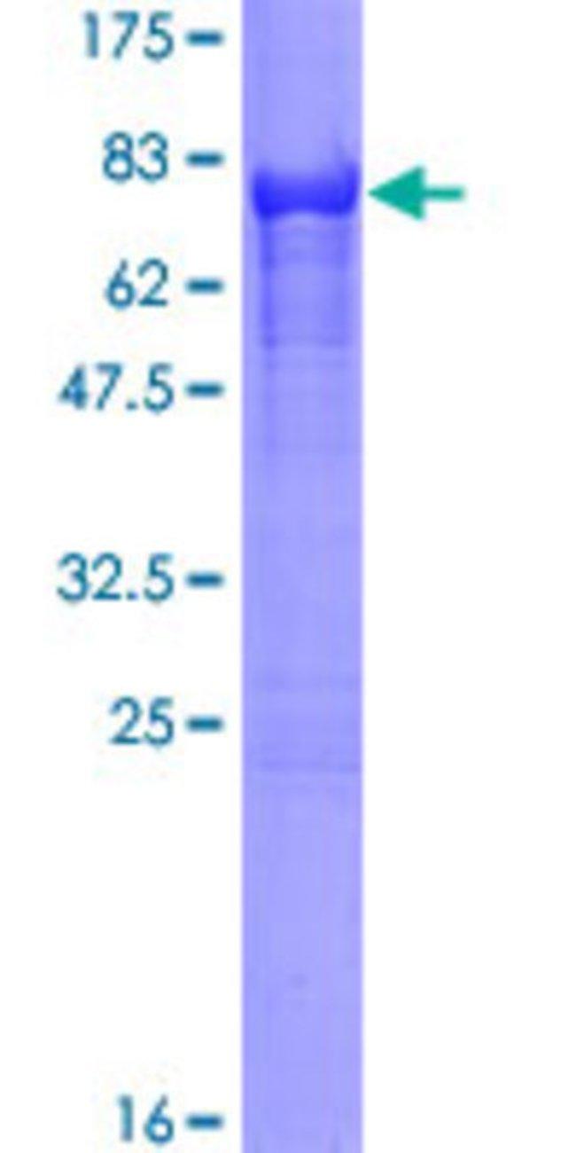 AbnovaHuman CALCOCO2 Full-length ORF (NP_005822.1, 1 a.a. - 446 a.a.) Recombinant