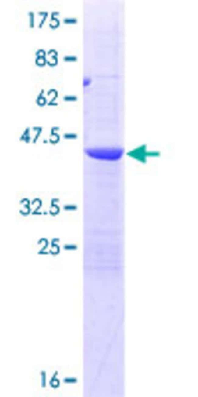 AbnovaHuman POP7 Full-length ORF (AAH01430.1, 1 a.a. - 140 a.a.) Recombinant