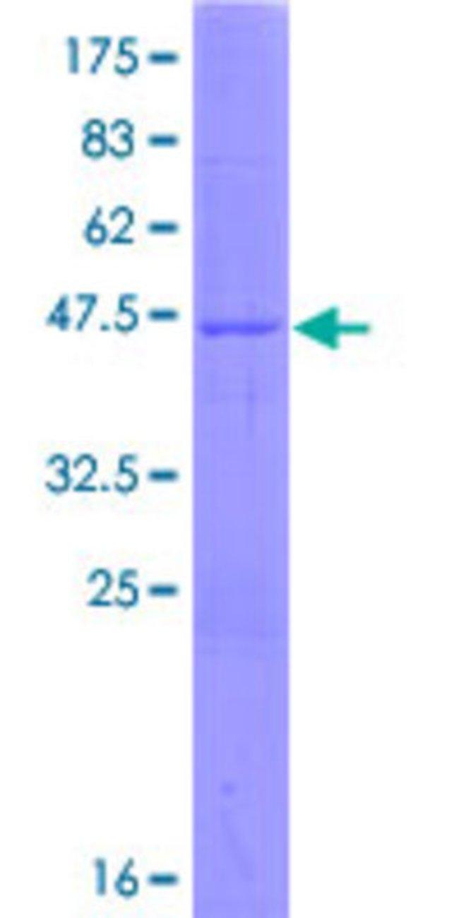 AbnovaHuman GLYAT Full-length ORF (AAH09785.1, 1 a.a. - 163 a.a.) Recombinant