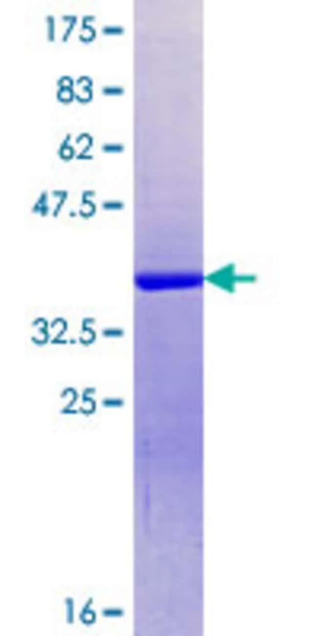 AbnovaHuman SRRM1 Partial ORF (NP_005830.2, 1 a.a. - 100 a.a.) Recombinant