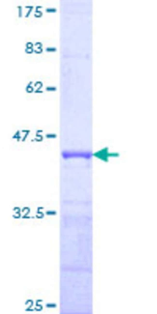 AbnovaHuman SPRY1 Partial ORF (NP_005832, 1 a.a. - 110 a.a.) Recombinant