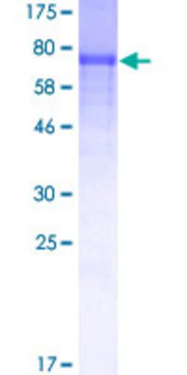 AbnovaHuman STAM2 Full-length ORF (AAH28740, 1 a.a. - 525 a.a.) Recombinant