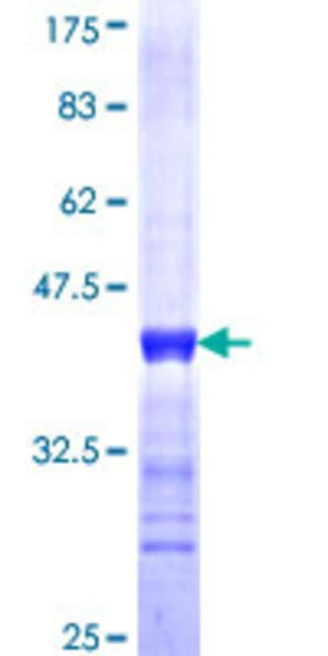 Abnova™Human MYCPBP Partial ORF (NP_005839, 1 a.a. - 101 a.a.) Recombinant Protein with GST-tag at N-terminal 25μg Abnova™Human MYCPBP Partial ORF (NP_005839, 1 a.a. - 101 a.a.) Recombinant Protein with GST-tag at N-terminal