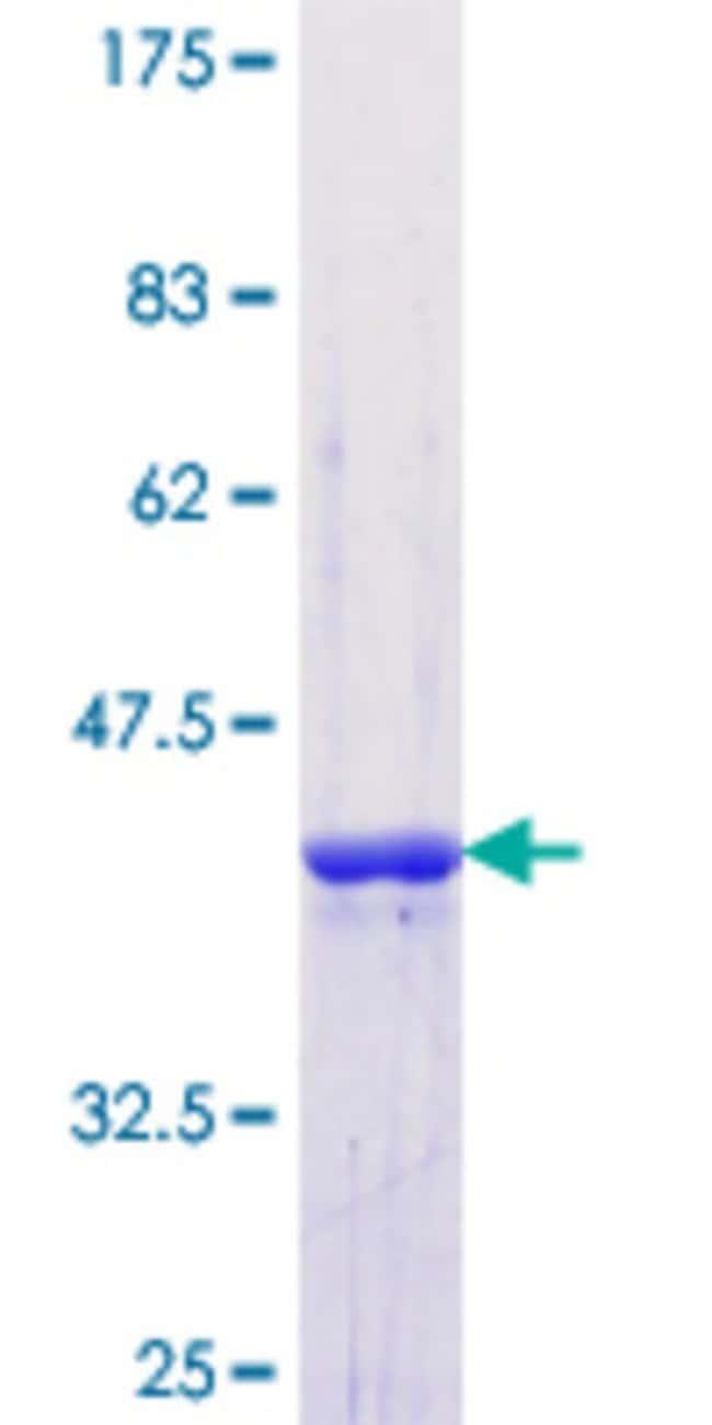 Abnova™Human SF3B4 Partial ORF (NP_005841.1, 13 a.a. - 122 a.a.) Recombinant Protein with GST-tag at N-terminal 10μg Abnova™Human SF3B4 Partial ORF (NP_005841.1, 13 a.a. - 122 a.a.) Recombinant Protein with GST-tag at N-terminal