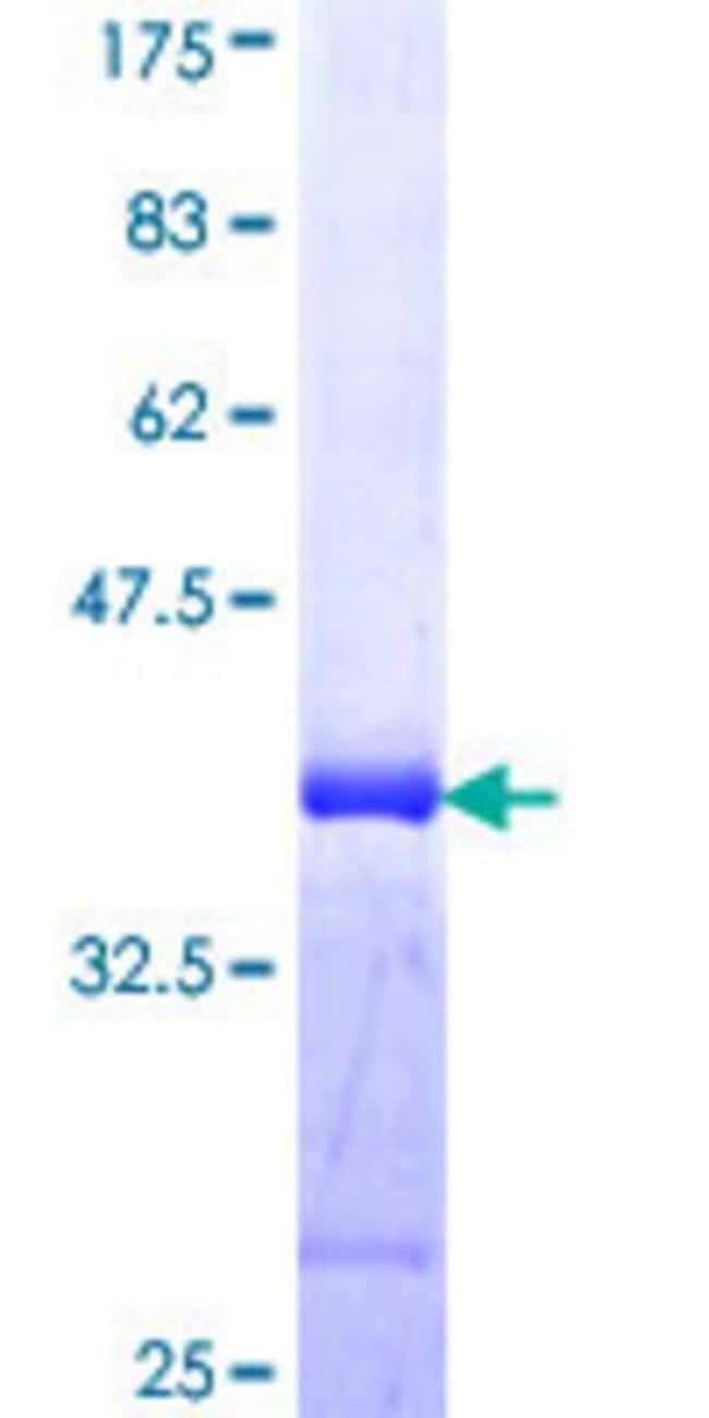 AbnovaHuman IRX5 Partial ORF (NP_005844, 204 a.a. - 264 a.a.) Recombinant