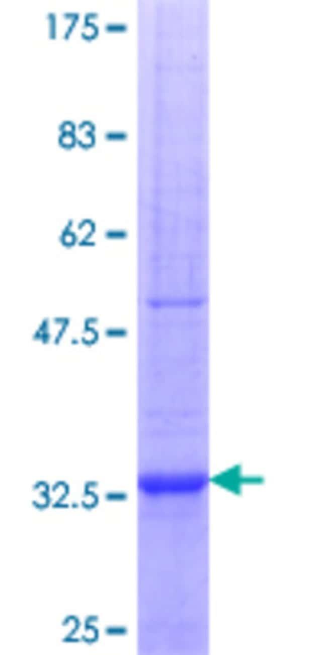 AbnovaHuman RAMP2 Partial ORF (NP_005845.1, 58 a.a. - 145 a.a.) Recombinant
