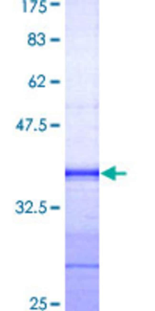 AbnovaHuman EFS Partial ORF (AAH34246, 369 a.a. - 468 a.a.) Recombinant