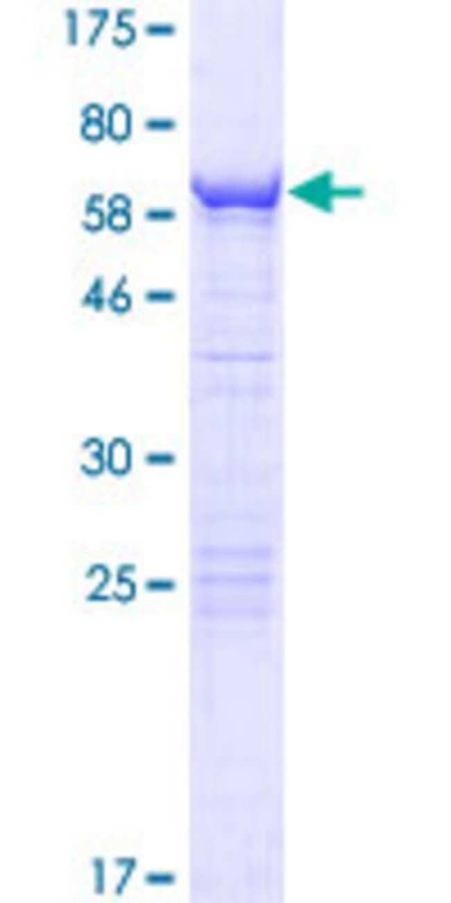 AbnovaHuman SDCCAG10 Full-length ORF (AAH12117.1, 1 a.a. - 291 a.a.) Recombinant