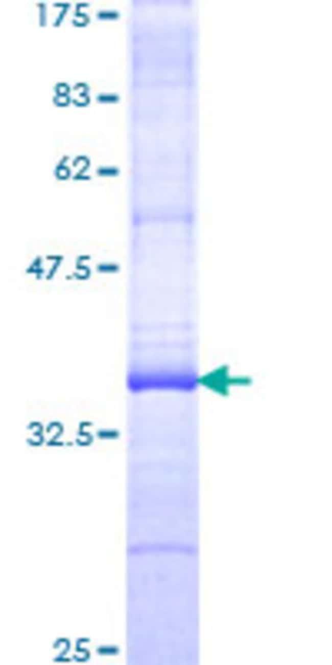 AbnovaHuman RGS19 Partial ORF (NP_005864, 51 a.a. - 140 a.a.) Recombinant