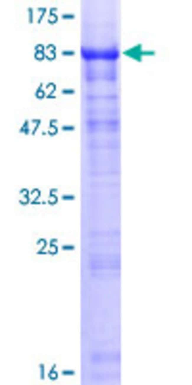 Abnova™Human HABP2 Full-length ORF (NP_004123.1, 1 a.a. - 560 a.a.) Recombinant Protein with GST-tag at N-terminal 10μg Abnova™Human HABP2 Full-length ORF (NP_004123.1, 1 a.a. - 560 a.a.) Recombinant Protein with GST-tag at N-terminal