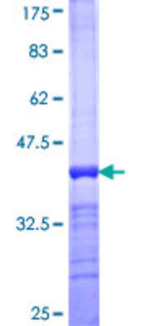 AbnovaHuman SF3A1 Partial ORF (NP_005868, 140 a.a. - 227 a.a.) Recombinant