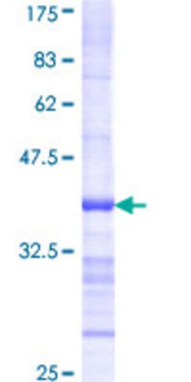 AbnovaHuman BCKDK Partial ORF (AAH07363, 31 a.a. - 120 a.a.) Recombinant