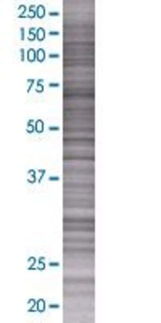 Abnova HABP2 293T Cell Transient Overexpression Lysate (Denatured) 100µL:Life