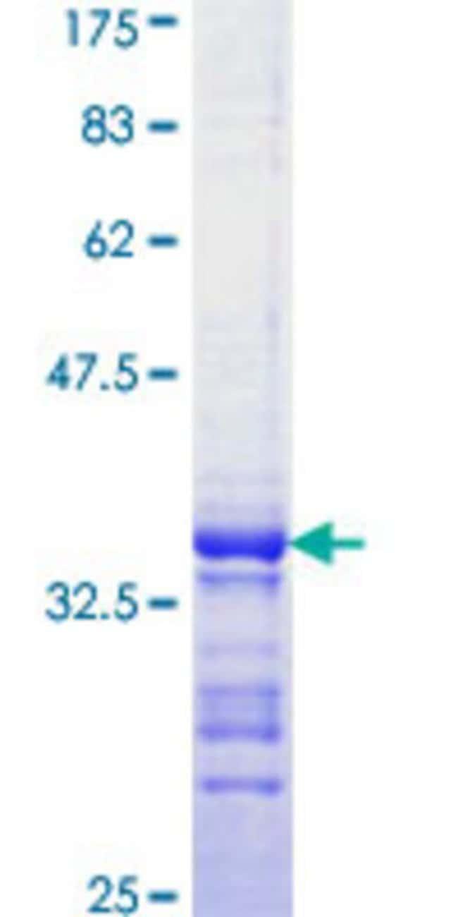 AbnovaHuman PAK4 Partial ORF (AAH02921, 68 a.a. - 157 a.a.) Recombinant
