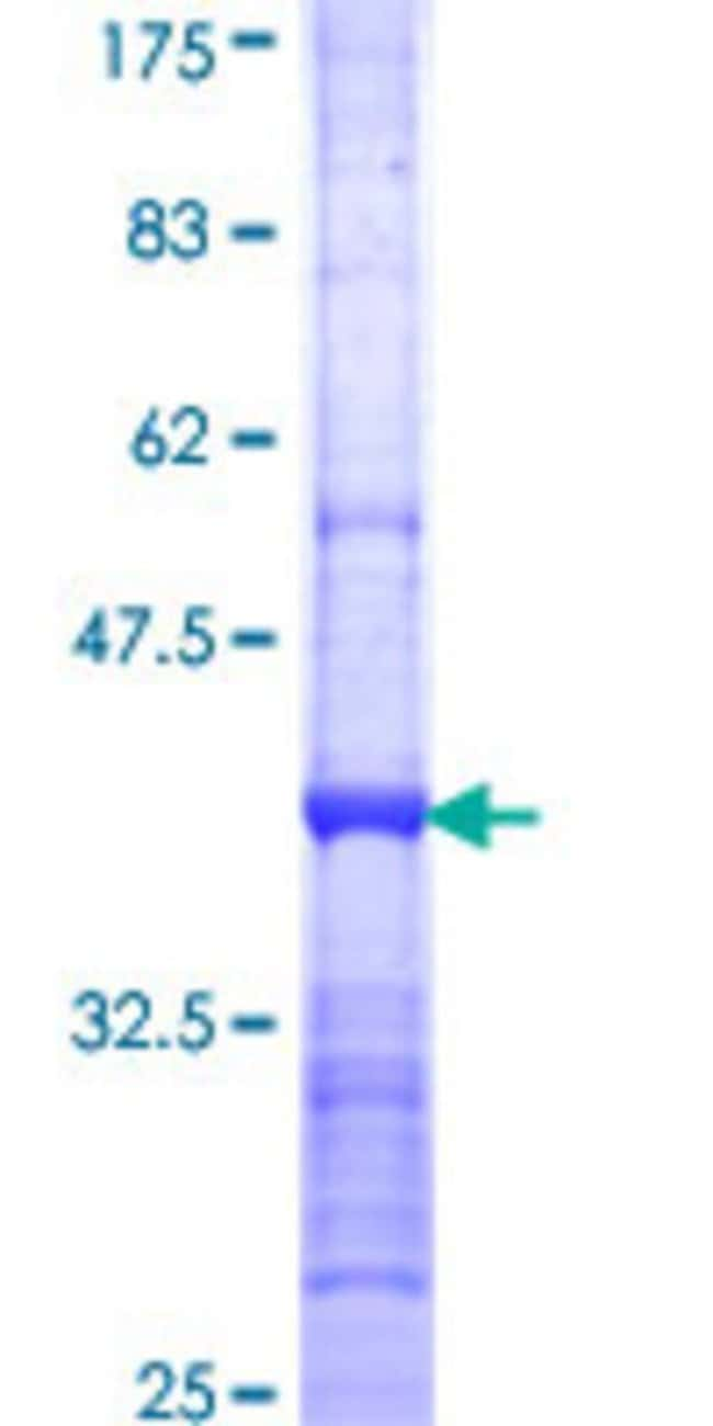AbnovaHuman ZNF267 Partial ORF (NP_003405, 132 a.a. - 230 a.a.) Recombinant