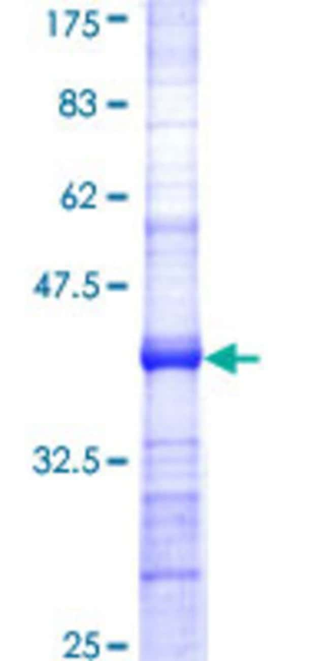 AbnovaHuman B3GALT5 Partial ORF (NP_006048, 29 a.a. - 128 a.a.) Recombinant
