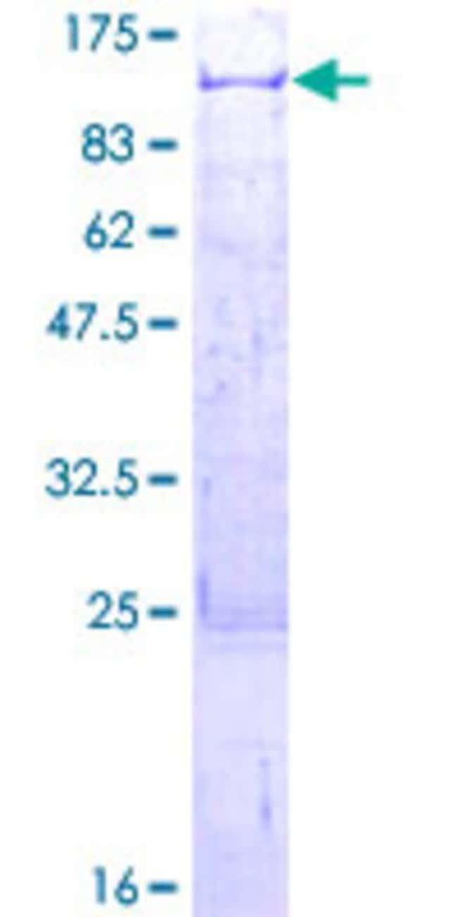 AbnovaHuman TNIP1 Full-length ORF (AAH14008.1, 1 a.a. - 636 a.a.) Recombinant