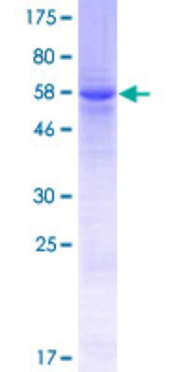 AbnovaHuman SMYD5 Full-length ORF (NP_006053.1, 1 a.a. - 302 a.a.) Recombinant