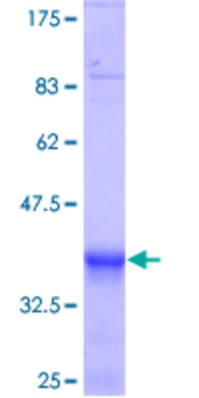 Abnova Human KBTBD10 Partial ORF (NP_006054.2, 205 a.a. - 304 a.a.) Recombinant