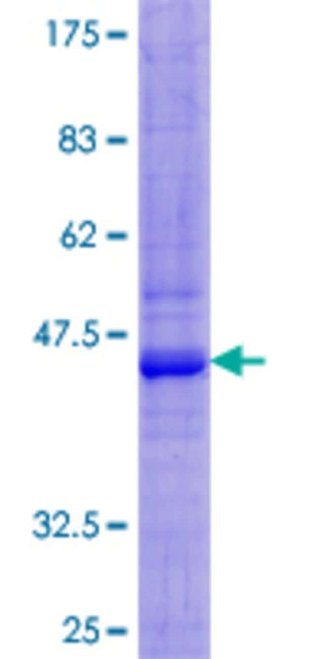 Abnova™Human SIRPB1 Full-length ORF (AAH75835.1, 1 a.a. - 181 a.a.) Recombinant Protein with GST-tag at N-terminal 25μg Abnova™Human SIRPB1 Full-length ORF (AAH75835.1, 1 a.a. - 181 a.a.) Recombinant Protein with GST-tag at N-terminal