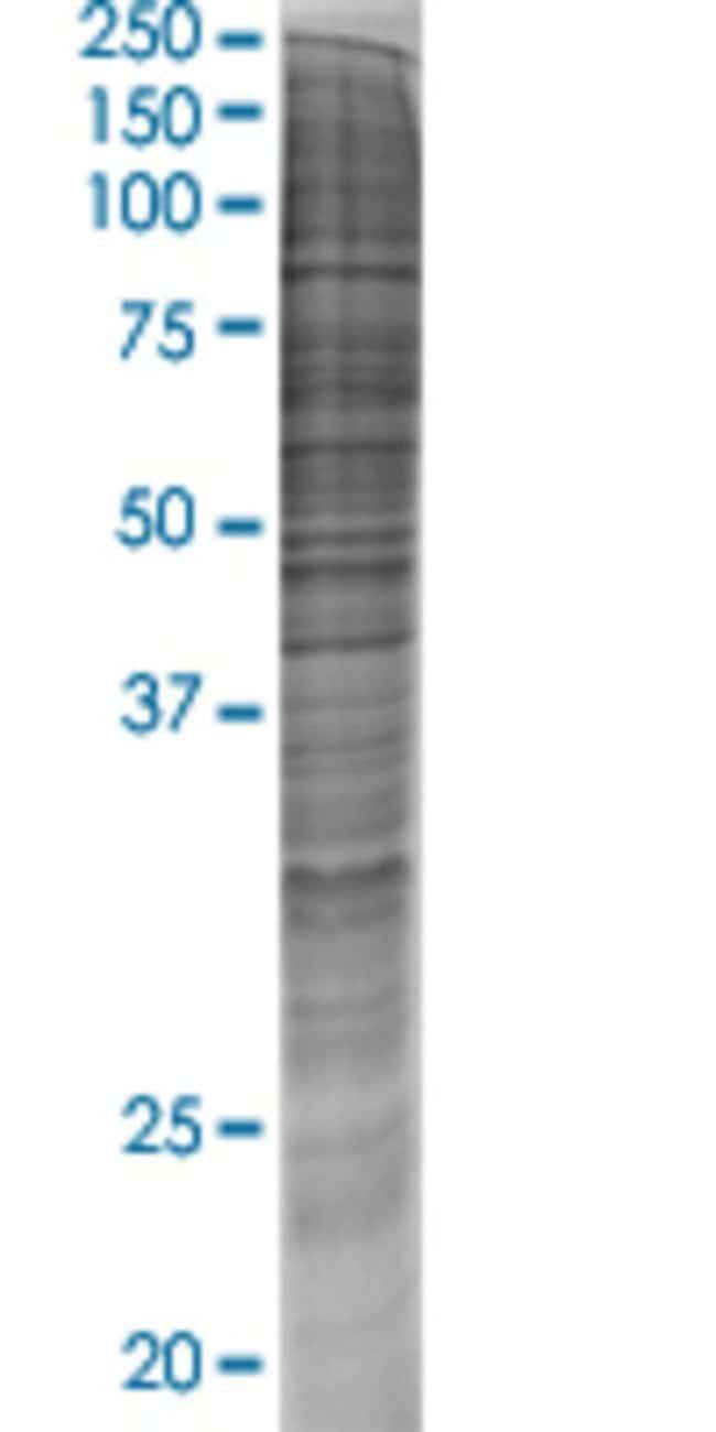 Abnova HADHA 293T Cell Transient Overexpression Lysate (Denatured) 100µL:Life