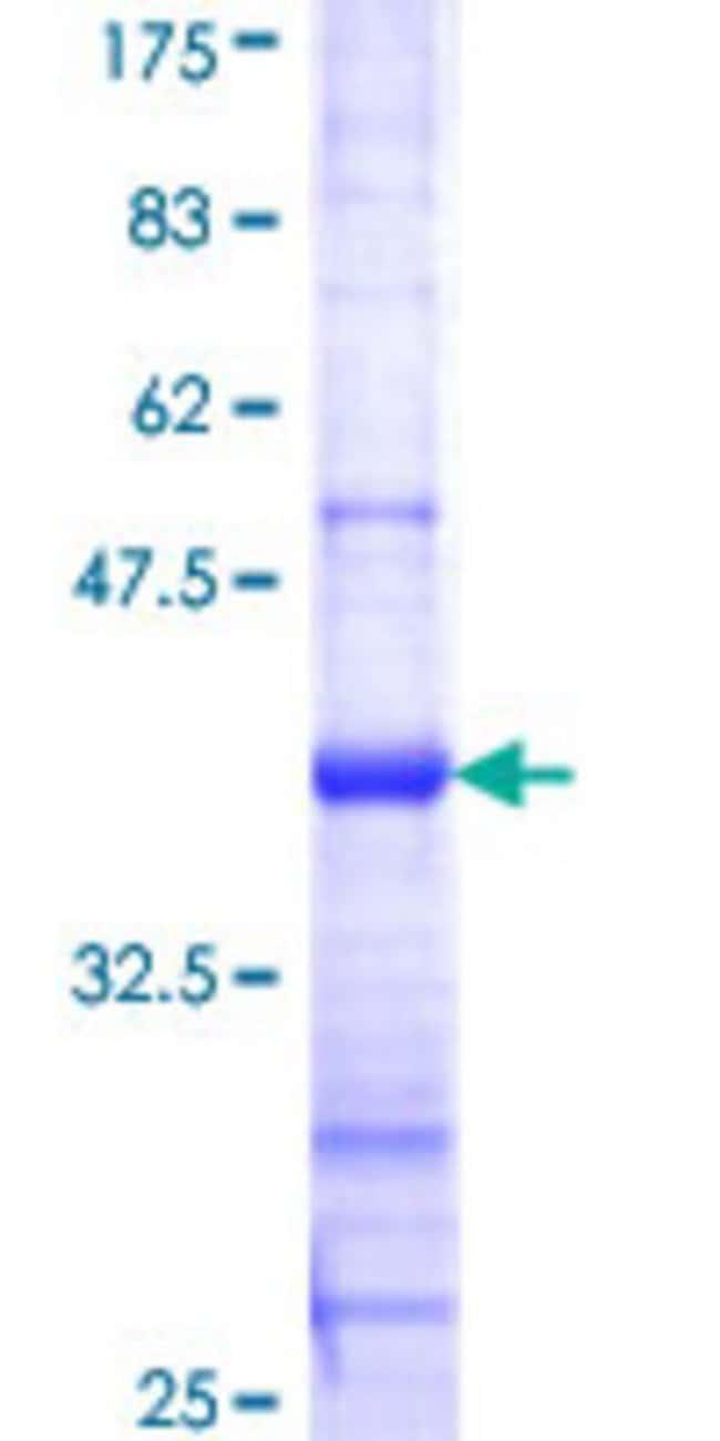 AbnovaHuman CLEC4M Partial ORF (NP_055072, 285 a.a. - 394 a.a.) Recombinant