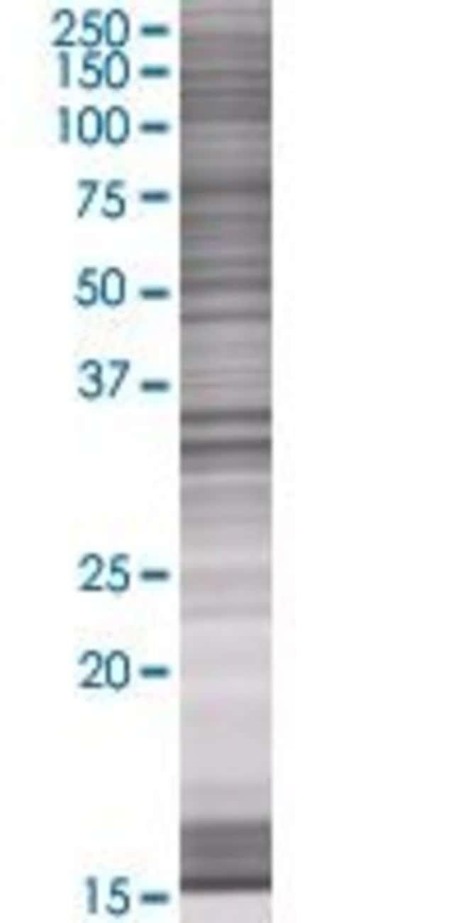 Abnova HADHSC 293T Cell Transient Overexpression Lysate (Denatured) 100µL:Life