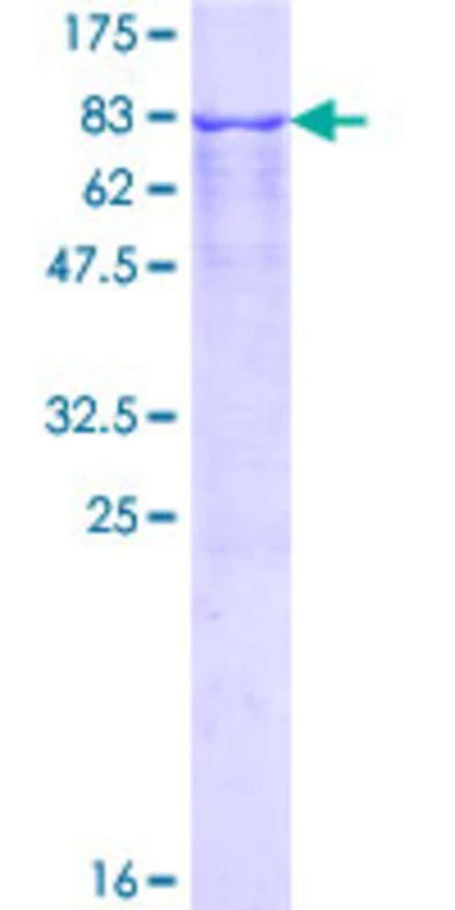 Abnova™ Human TFG Full-length ORF (NP_001007566.1, 1 a.a. - 400 a.a.) Recombinant Protein with GST-tag at N-terminal 10μg Abnova™ Human TFG Full-length ORF (NP_001007566.1, 1 a.a. - 400 a.a.) Recombinant Protein with GST-tag at N-terminal