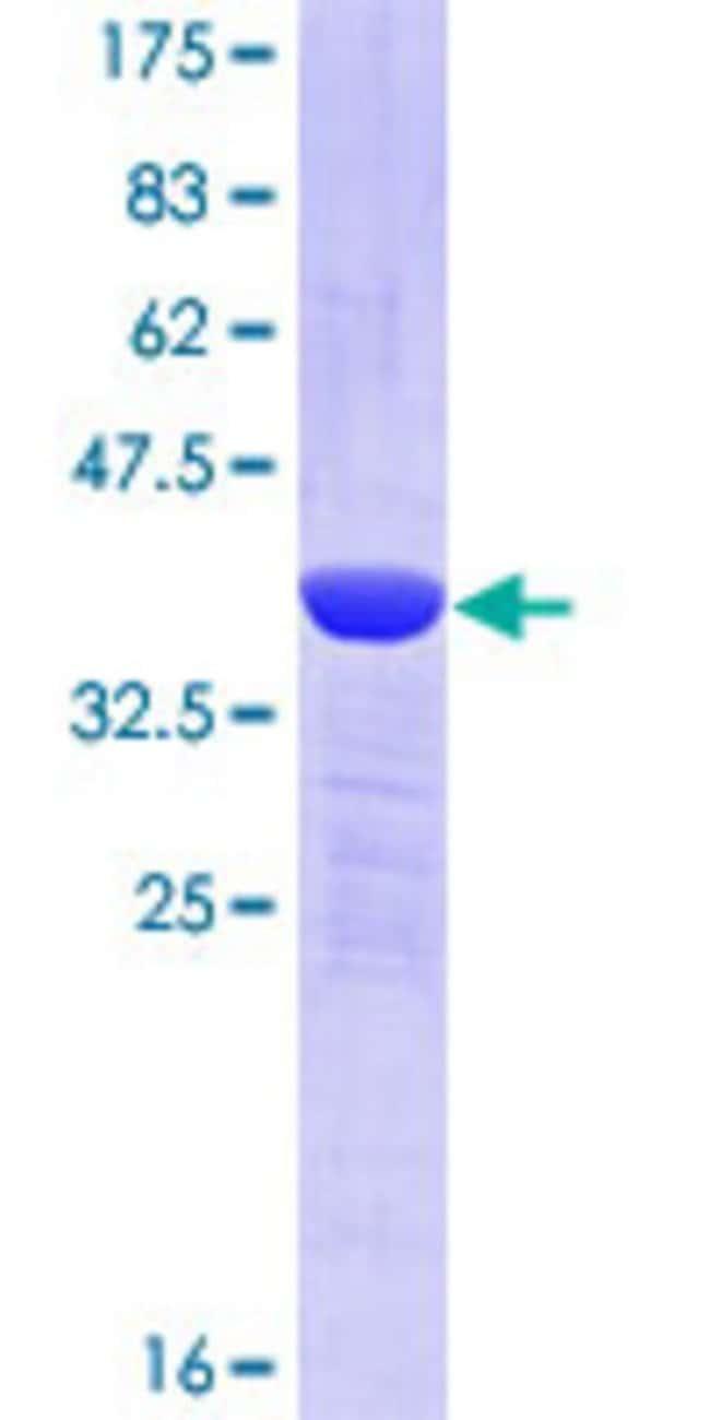 AbnovaHuman TFG Partial ORF (NP_006061, 1 a.a. - 110 a.a.) Recombinant