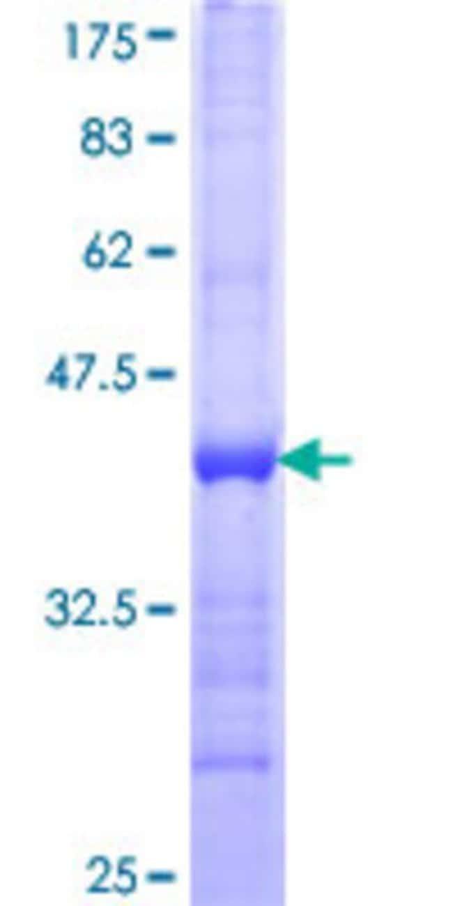 Abnova Human HARS Partial ORF (NP_002100, 1 a.a. - 96 a.a.) Recombinant