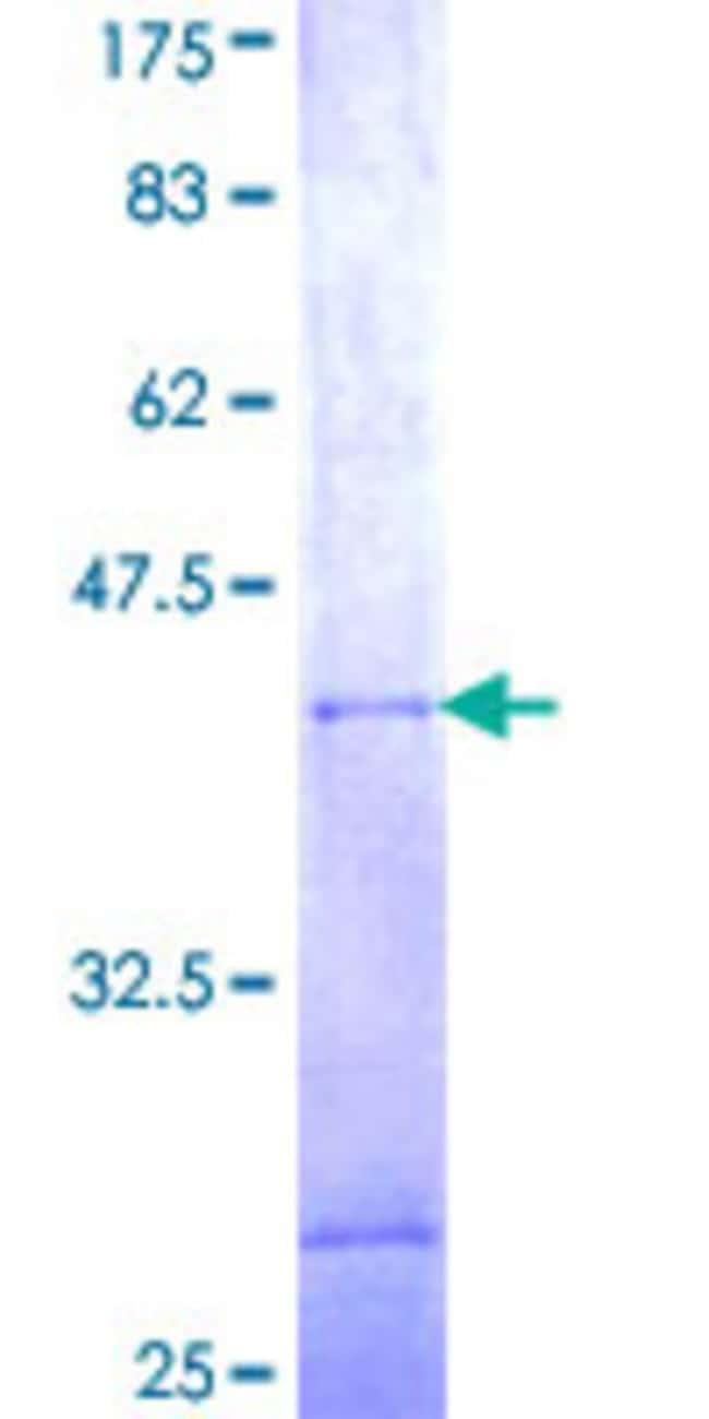 AbnovaHuman WARS2 Partial ORF (NP_056651, 113 a.a. - 222 a.a.) Recombinant
