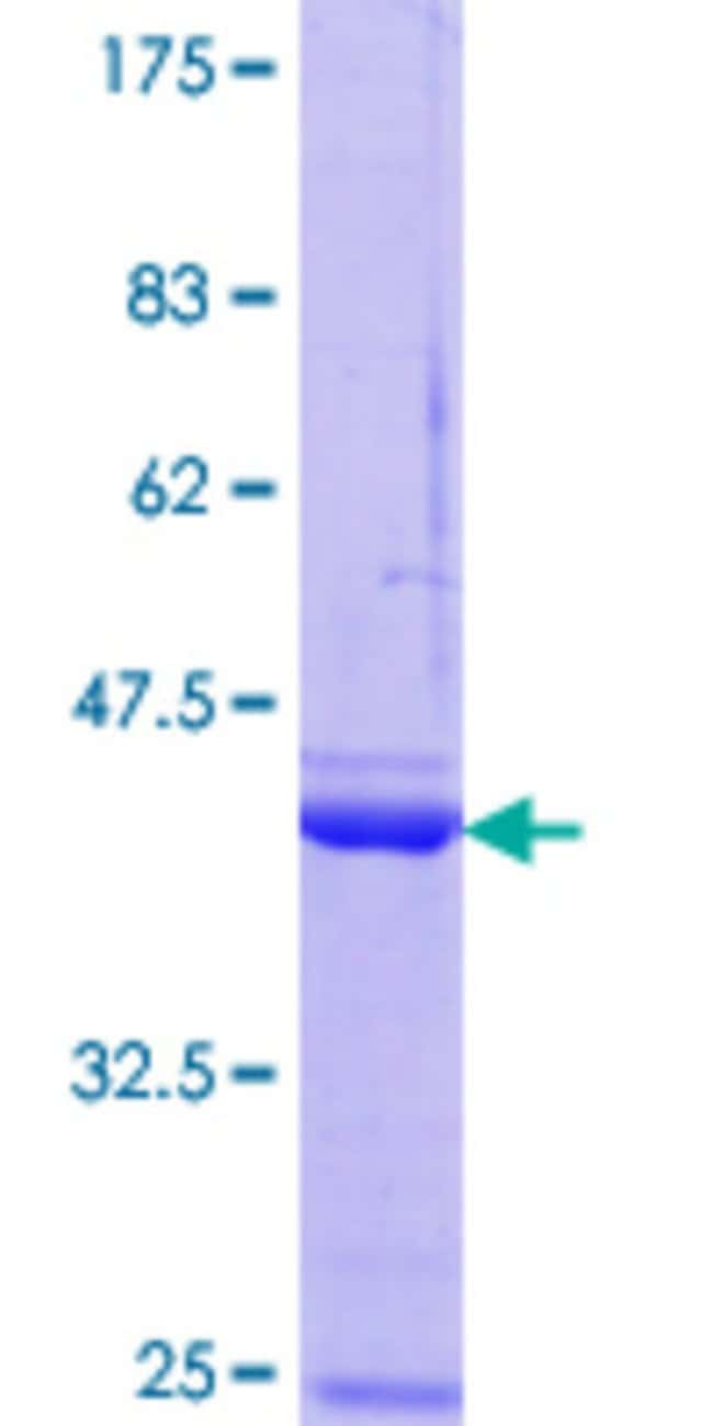AbnovaHuman NPM3 Partial ORF (NP_008924.1, 31 a.a. - 140 a.a.) Recombinant