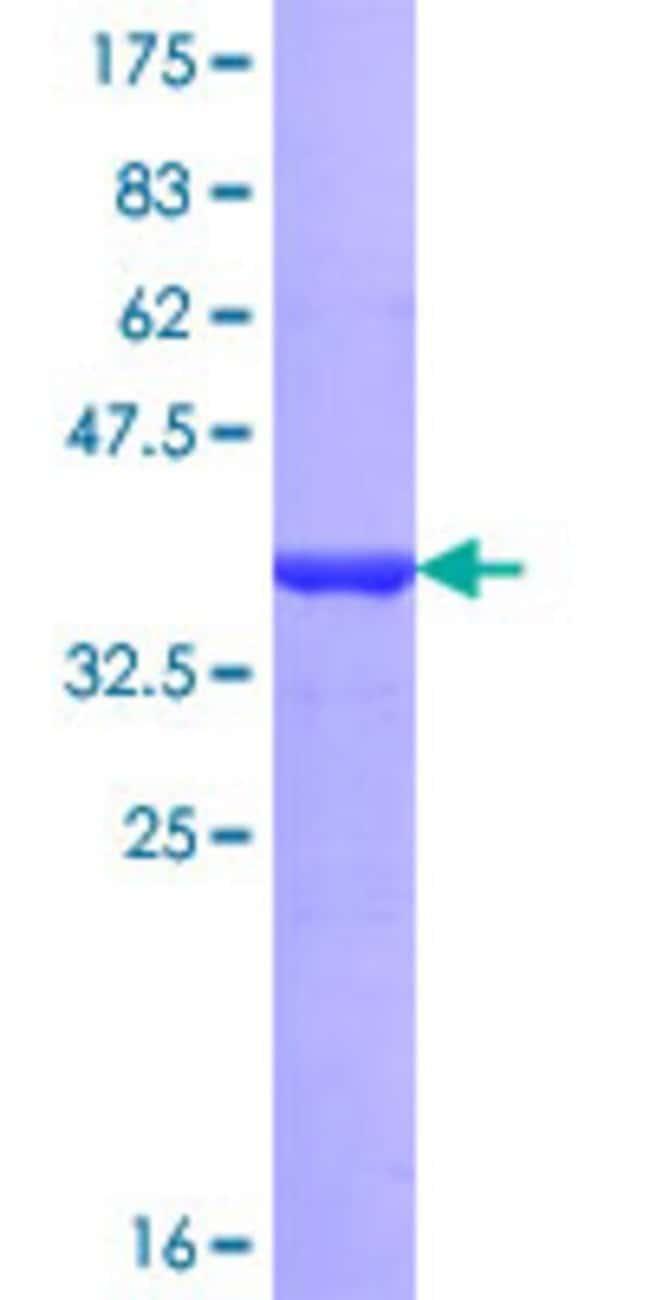 AbnovaHuman HMG20B Partial ORF (NP_006330, 1 a.a. - 109 a.a.) Recombinant