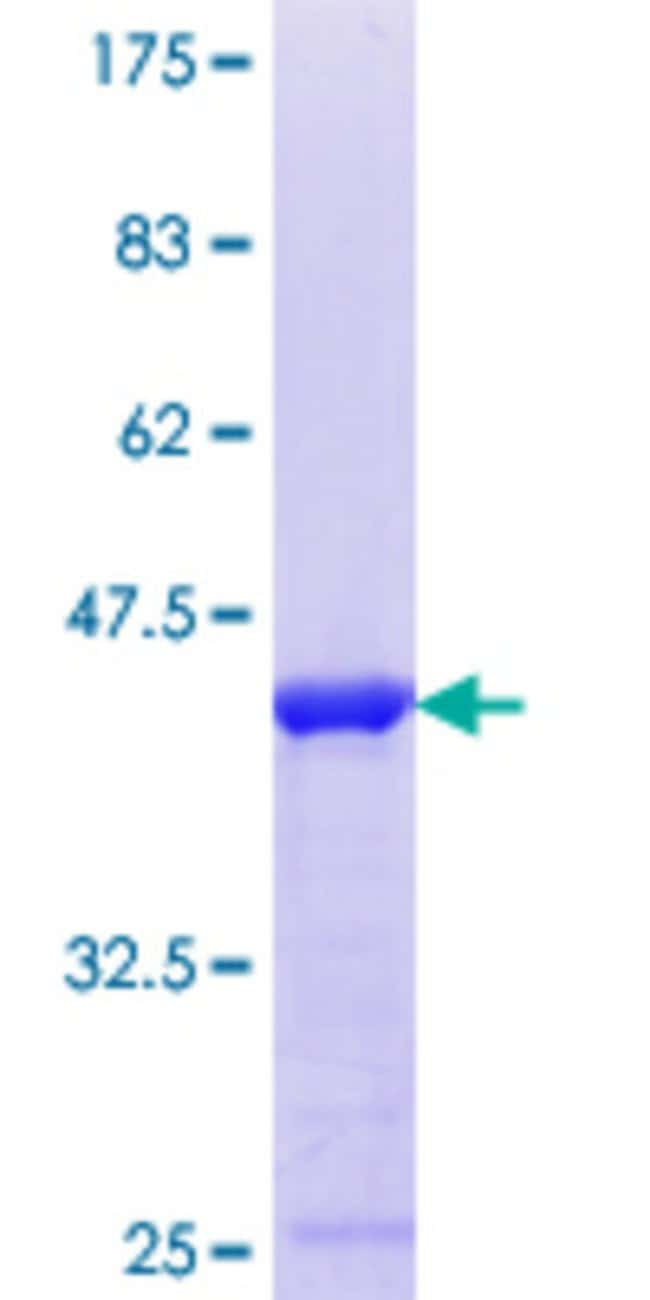 Abnova™Human HMG20A Partial ORF (NP_060670.1, 153 a.a. - 262 a.a.) Recombinant Protein with GST-tag at N-terminal 10μg Abnova™Human HMG20A Partial ORF (NP_060670.1, 153 a.a. - 262 a.a.) Recombinant Protein with GST-tag at N-terminal