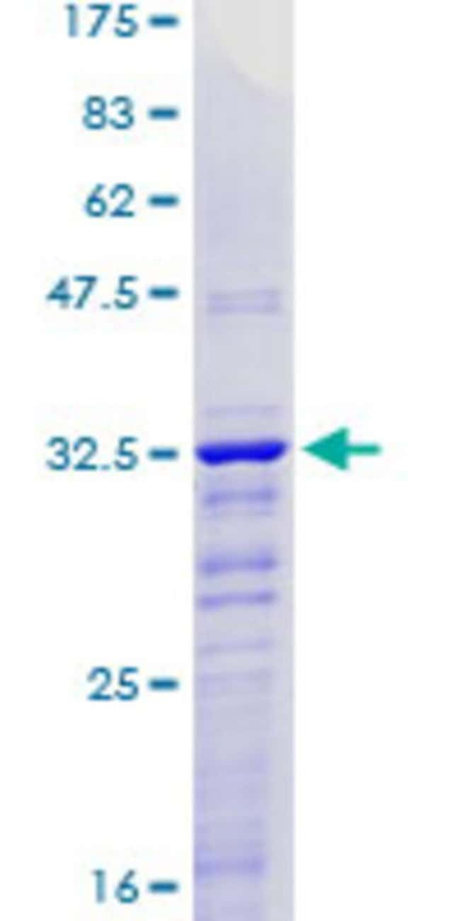 AbnovaHuman KLF2 Partial ORF (NP_057354, 263 a.a. - 350 a.a.) Recombinant