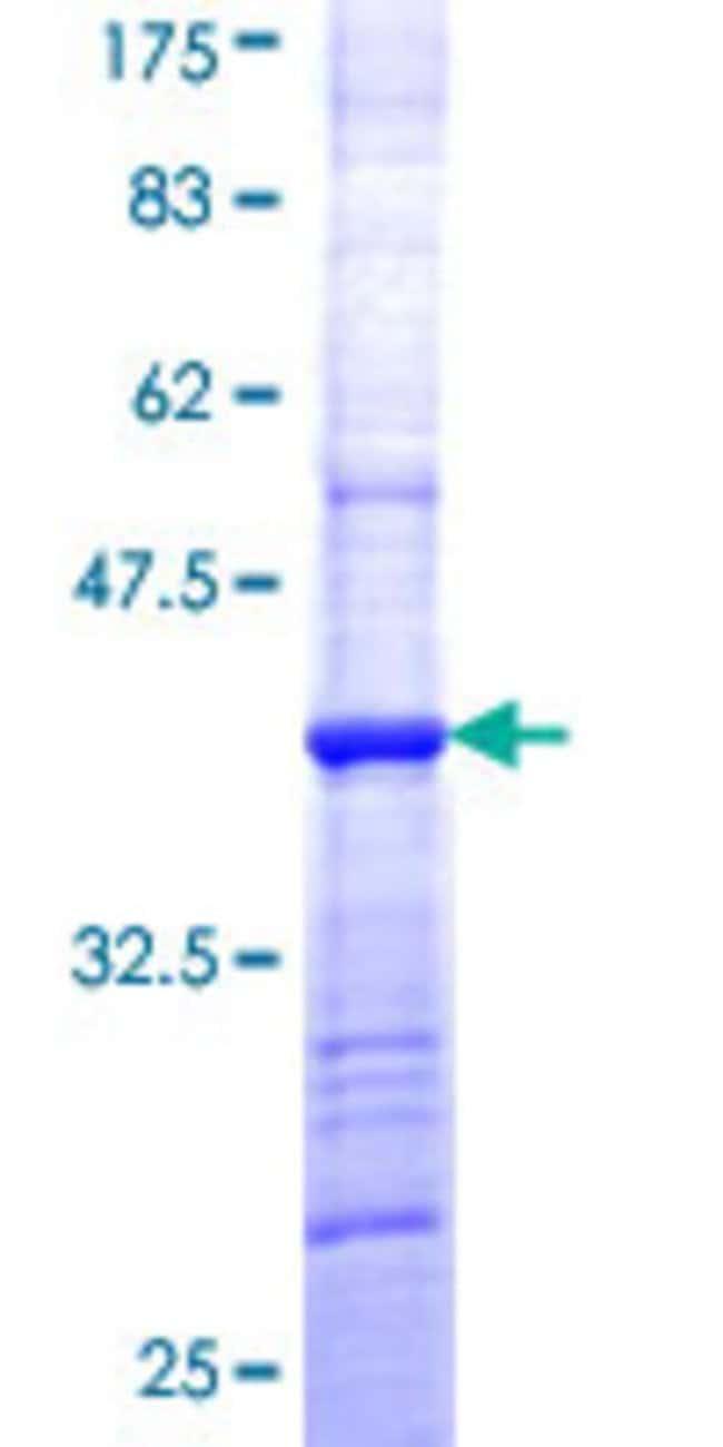 Abnova Human HCCS Partial ORF (NP_005324, 169 a.a. - 268 a.a.) Recombinant