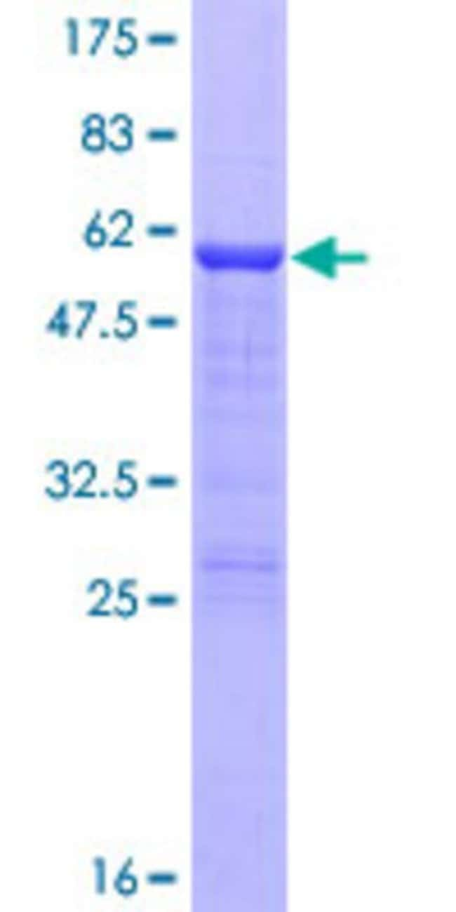 AbnovaHuman CITED2 Full-length ORF (NP_006070.2, 1 a.a. - 270 a.a.) Recombinant