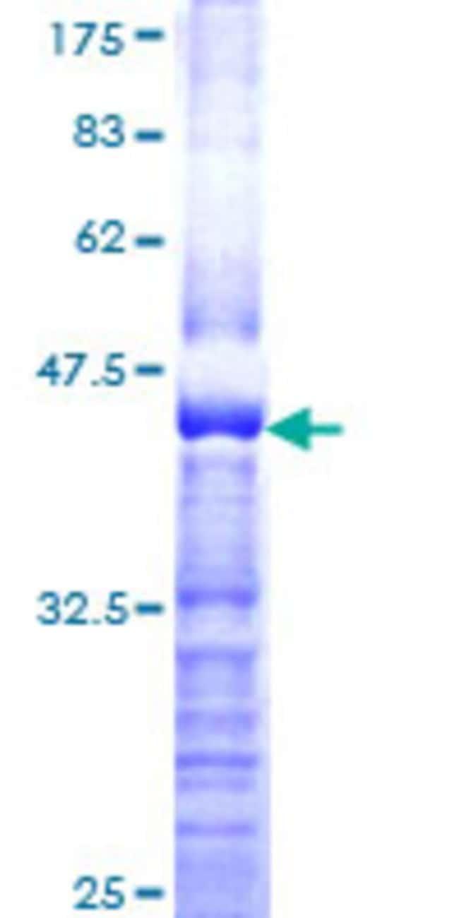 AbnovaHuman SEMA3A Partial ORF (NP_006071, 672 a.a. - 770 a.a.) Recombinant
