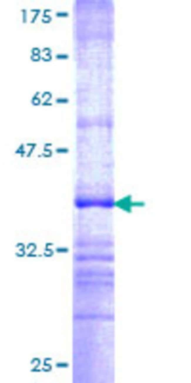AbnovaHuman BPNT1 Partial ORF (NP_006076, 1 a.a. - 100 a.a.) Recombinant