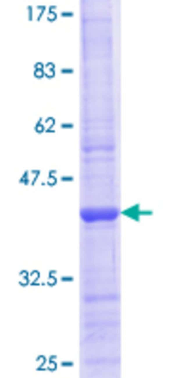 Abnova™Human TUBB3 Partial ORF (NP_006077.2, 351 a.a. - 450 a.a.) Recombinant Protein with GST-tag at N-terminal 10μg Abnova™Human TUBB3 Partial ORF (NP_006077.2, 351 a.a. - 450 a.a.) Recombinant Protein with GST-tag at N-terminal