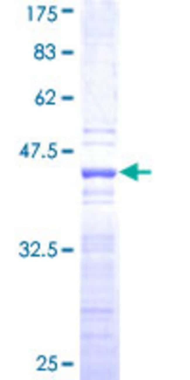 Abnova™ Human SCML2 Partial ORF (NP_006080, 251 a.a. - 350 a.a.) Recombinant Protein with GST-tag at N-terminal 25μg Abnova™ Human SCML2 Partial ORF (NP_006080, 251 a.a. - 350 a.a.) Recombinant Protein with GST-tag at N-terminal