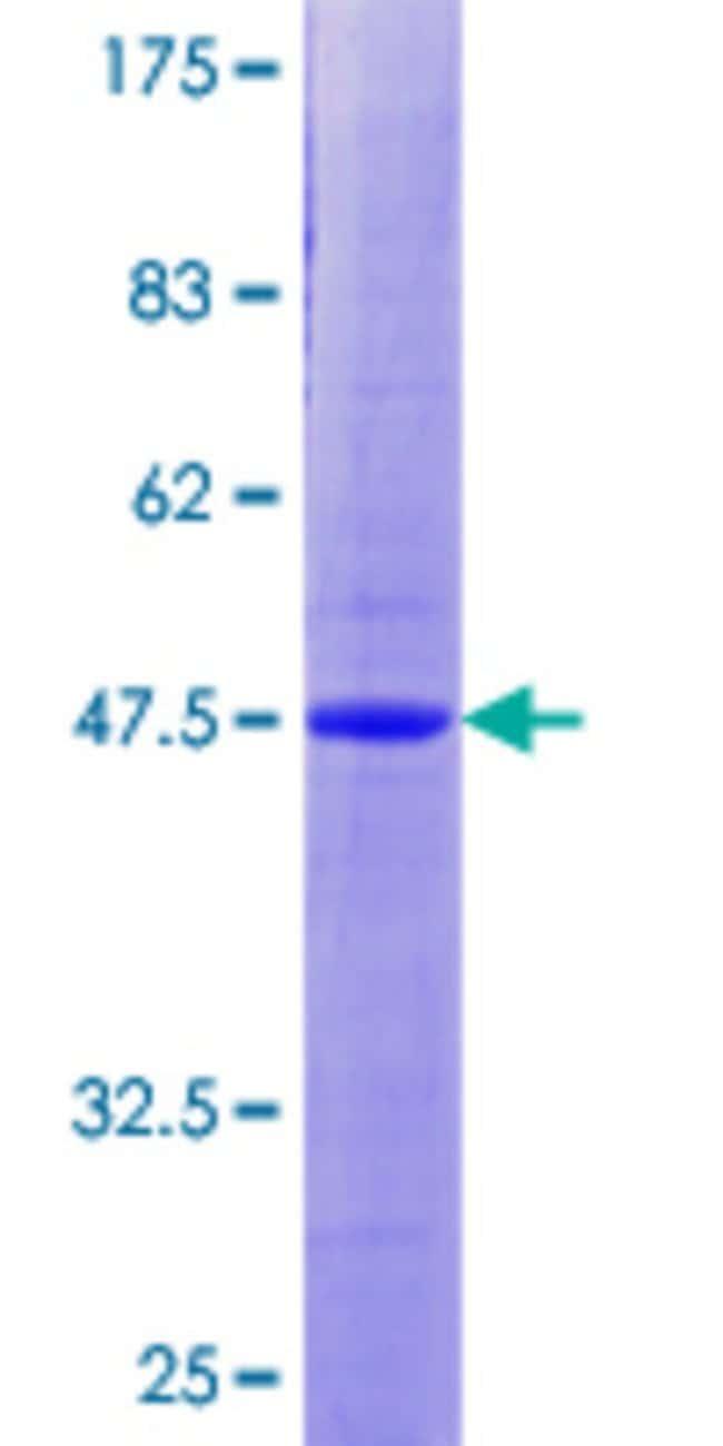 AbnovaHuman ANAPC10 Full-length ORF (AAH05217.1, 1 a.a. - 185 a.a.) Recombinant