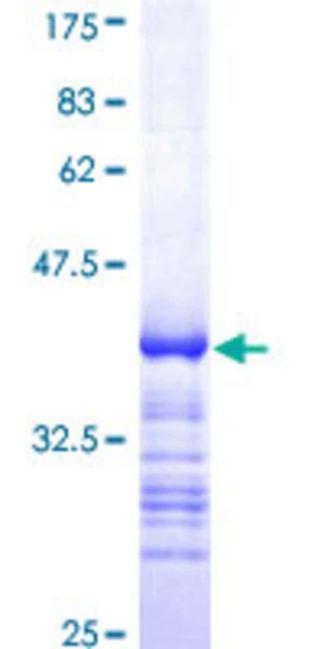 Abnova™Human HCLS1 Partial ORF (AAH16758, 266 a.a. - 355 a.a.) Recombinant Protein with GST-tag at N-terminal 25μg Abnova™Human HCLS1 Partial ORF (AAH16758, 266 a.a. - 355 a.a.) Recombinant Protein with GST-tag at N-terminal