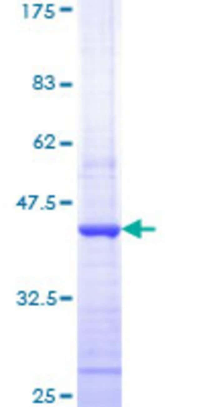 Abnova™Human HDAC1 Partial ORF (NP_004955, 28 a.a. - 137 a.a.) Recombinant Protein with GST-tag at N-terminal 10μg Abnova™Human HDAC1 Partial ORF (NP_004955, 28 a.a. - 137 a.a.) Recombinant Protein with GST-tag at N-terminal