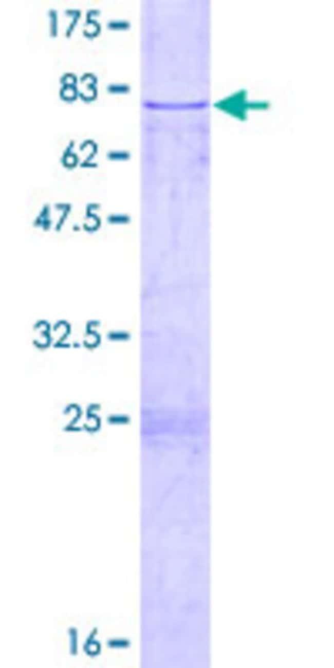 Abnova Human CFH Full-length ORF (AAH37285.1, 1 a.a. - 449 a.a.) Recombinant