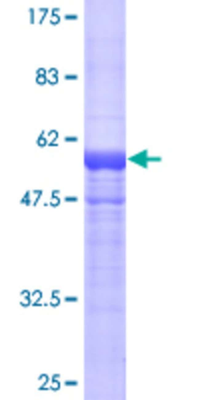 Abnova Human HGD Full-length ORF (AAH20792, 1 a.a. - 329 a.a.) Recombinant